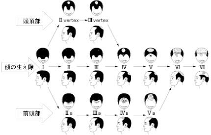 AGAの進行パターンの一覧